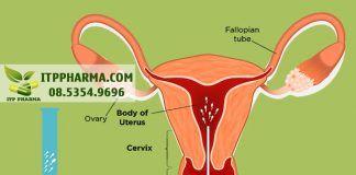 Bơm tinh trùng vào buồng tử cung