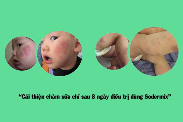 Cải thiện chàm sữa sau 8 ngày điều trị dùng SODERMIX®