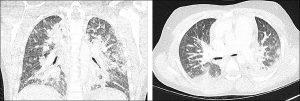 Hình 1. Hình ảnh CT phổi của bệnh nhân thứ 3 cho thấy đông đặc hai bên lan tỏa chủ yếu nằm ở phần sau của thùy trên và thùy dưới