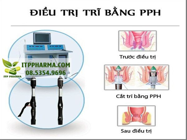 Hình ảnh điều trị trĩ bằng phương pháp PPH