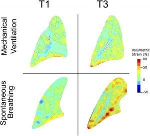 Hình 2. Bản đồ sức căng thể tích khu vực trong mô hình 3 giờ của bệnh nhân tự gây chấn thương phổi được chia ngẫu nhiên thành hai nhóm