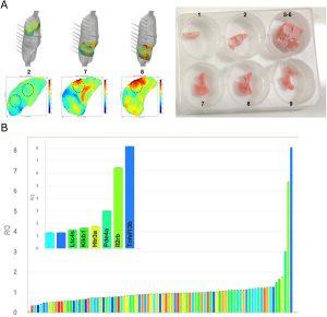 Hình 3. Sự biến đổi biểu hiện gen ở vùng phổi có strain cao và strain thấp trong mô hình chuột của bệnh nhân tự gây chấn thương phổi.