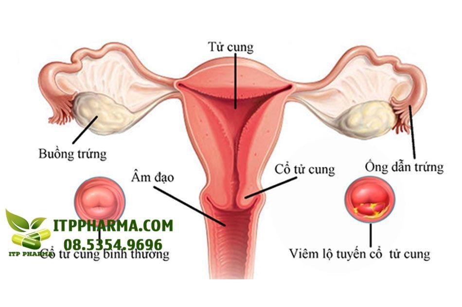 Hình ảnh minh họa viêm lộ tuyến tử cung