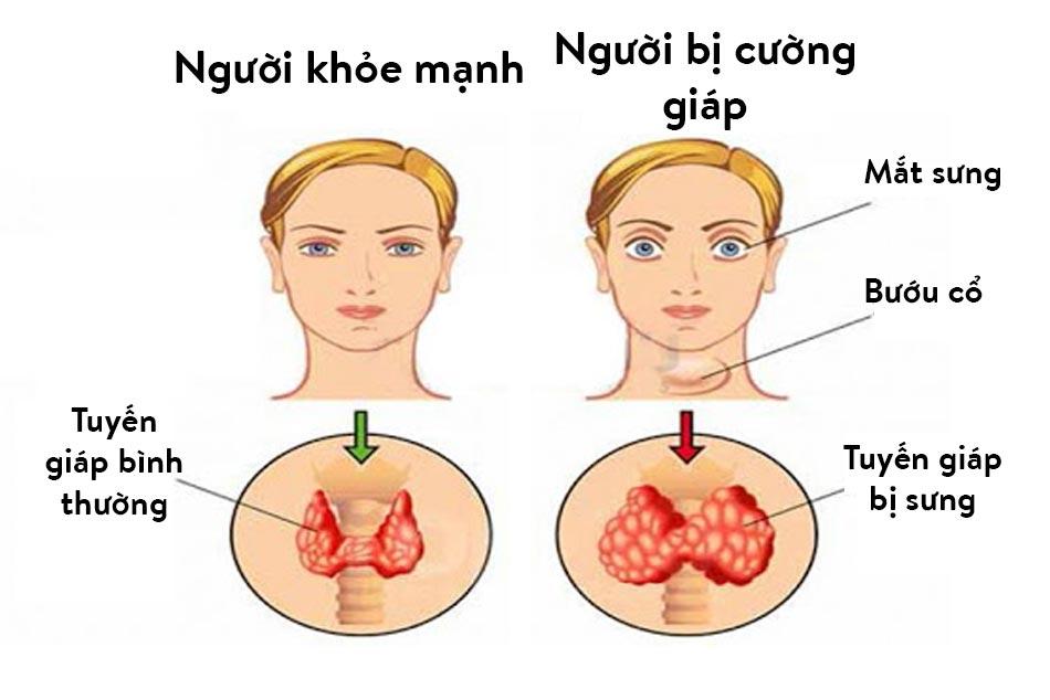 Triệu chứng lâm sàng của hội chứng cường giáp