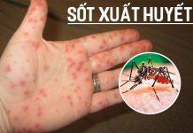 Bệnh sốt xuất huyết là gì? Nguyên nhân, triệu chứng và cách phòng ngừa