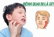 Bệnh quai bị là gì? Nguyên nhân, triệu chứng và cách điều trị