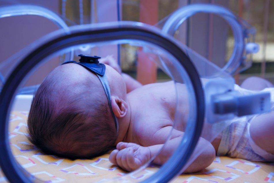Điều trị vàng da cho trẻ sơ sinh bằng phương pháp chiếu đèn