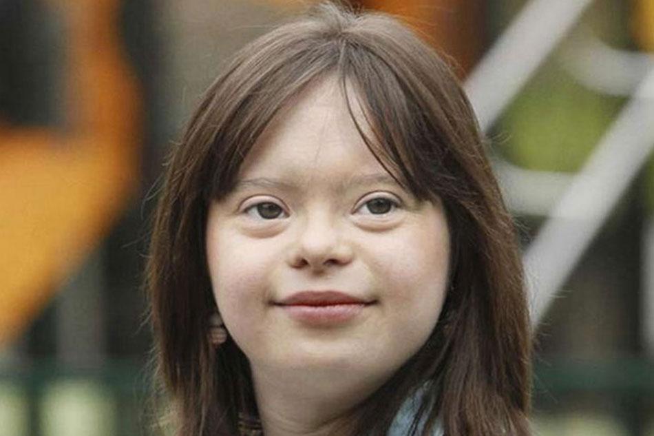 Hình ảnh bé gái mắc hội chứng Down