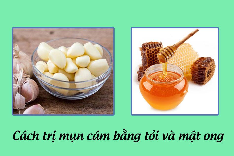 Kết hợp tỏi và mật ong trong điều trị mụn cám