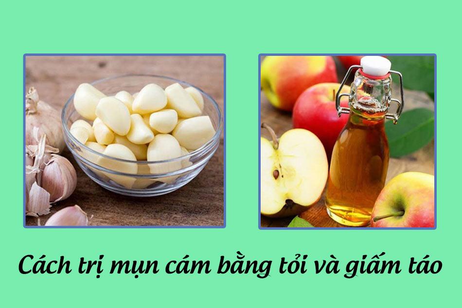 Kết hợp tỏi và giấm táo trong trị mụn cám